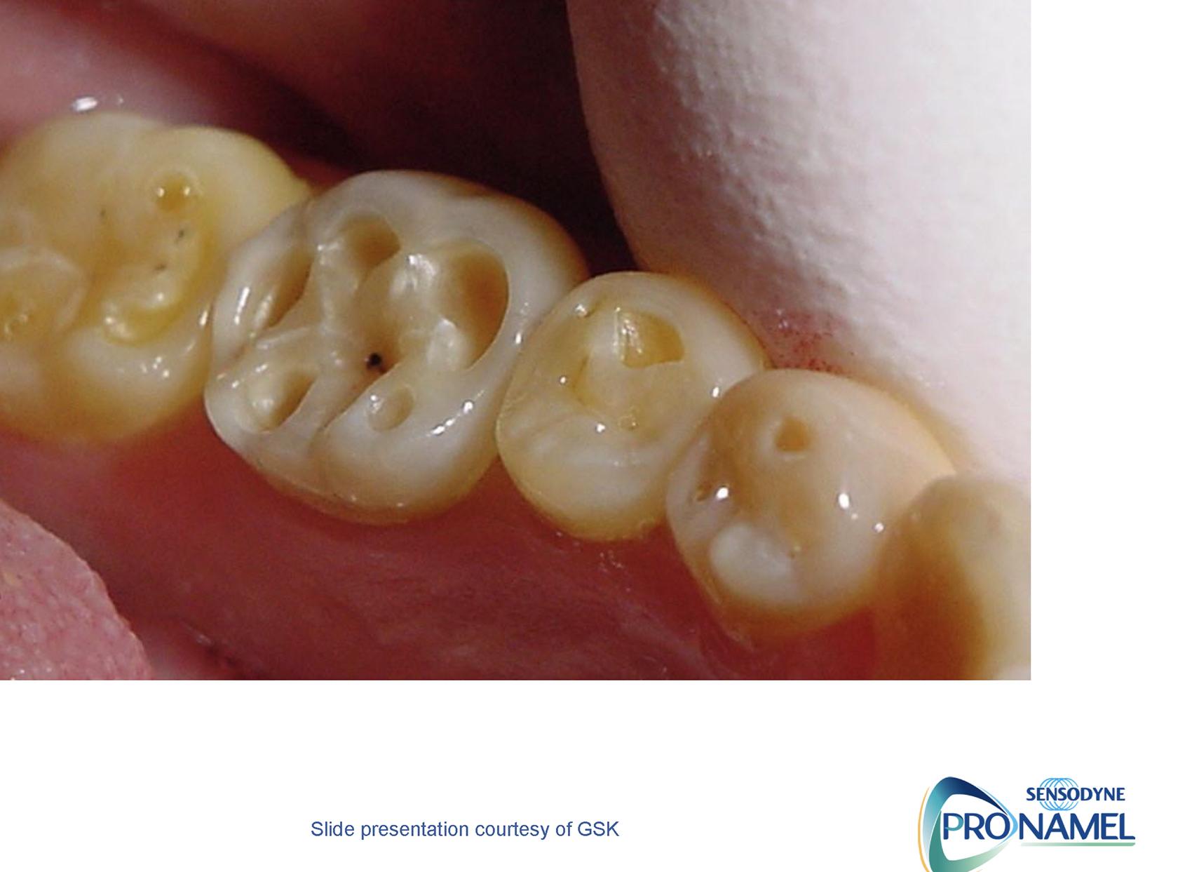 Het herkennen & monitoren van tanderosie? - GSK